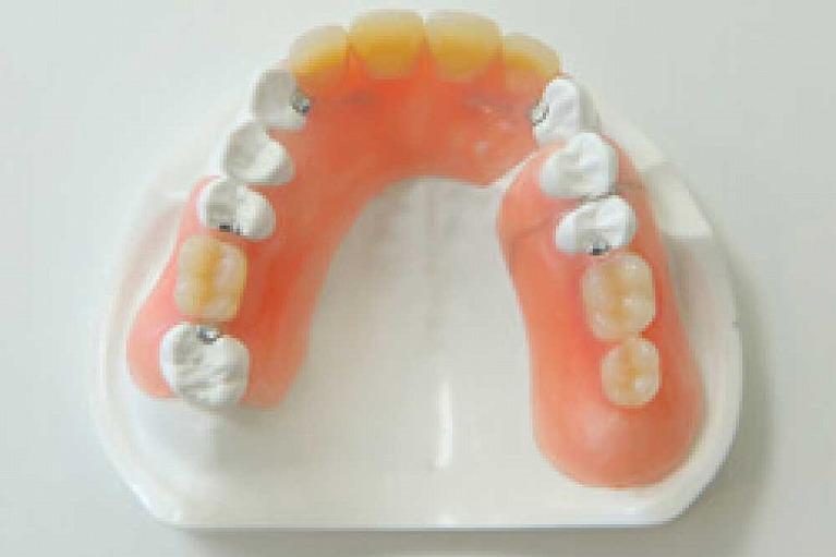 エステティックデンチャー(留め金のない入れ歯)