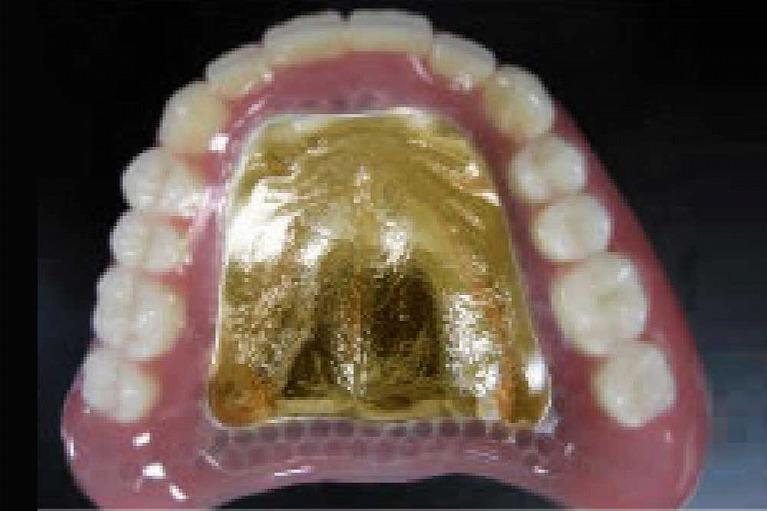 ゴールド金属床(白金加金)